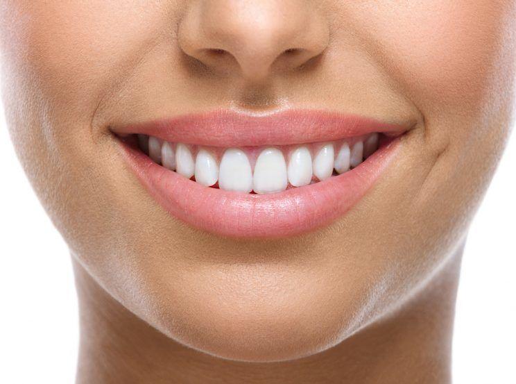 woman-with-white-healthy-teeth-e1460674021789.jpg