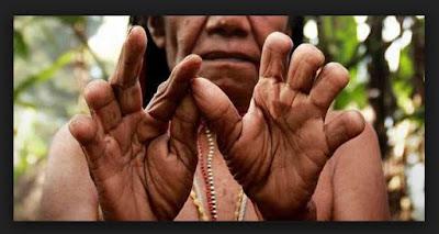 Tradisi Potong Jari Suku Dani